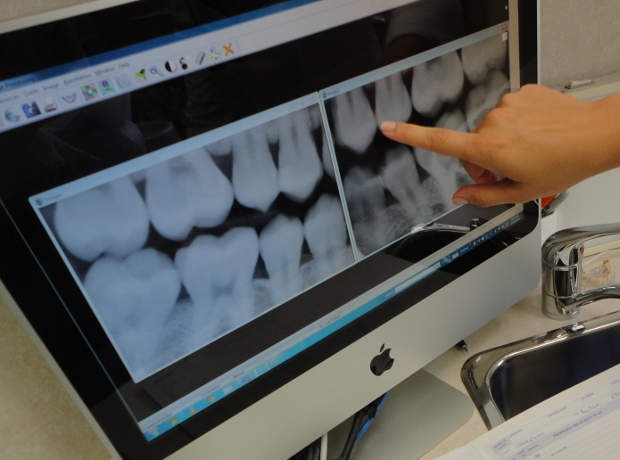 teeth-xray-burlington-dentist