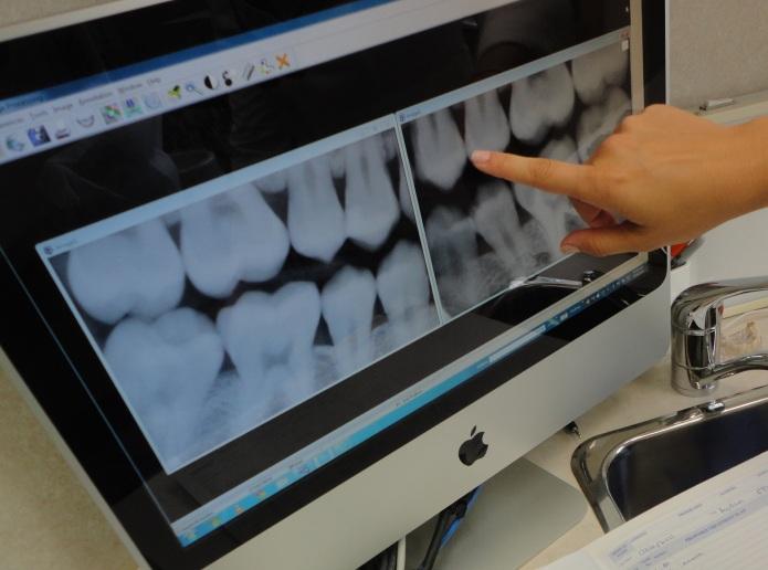 teeth-xray-burlington-dentist