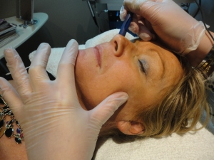 laser vein removal on nose, face